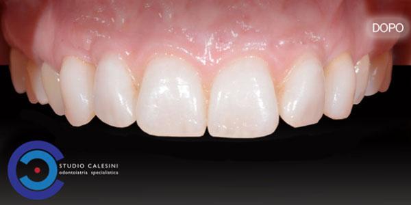 protesi dentali, studio calesini, studio, calesini, gaetano calesini, protesi, dentale, dentali, odontoiatria, dentista, roma, centro, center, rome, dentist,