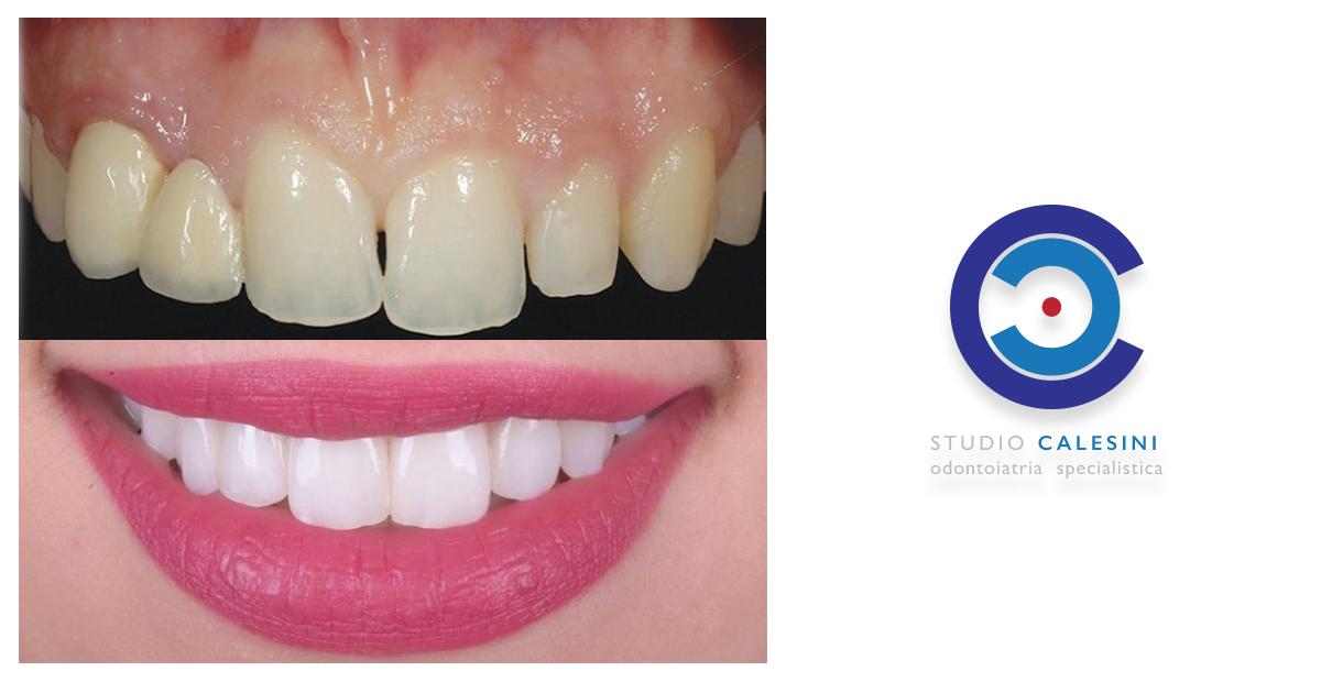 triangoli scuri, black triangles, studio calesini, calesini, studio, gaetano calesini, dental, dentale, dentali, dentista, dentist, rome, roma, center, centro, odontoiatria, protesi, smile, tooth