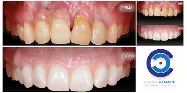 protesi dentale, protesi dentali, studio calesini, studio, calesini, gaetano calesini, protesi, dentale, dentali, odontoiatria, dentista, roma, centro, center, rome, dentist