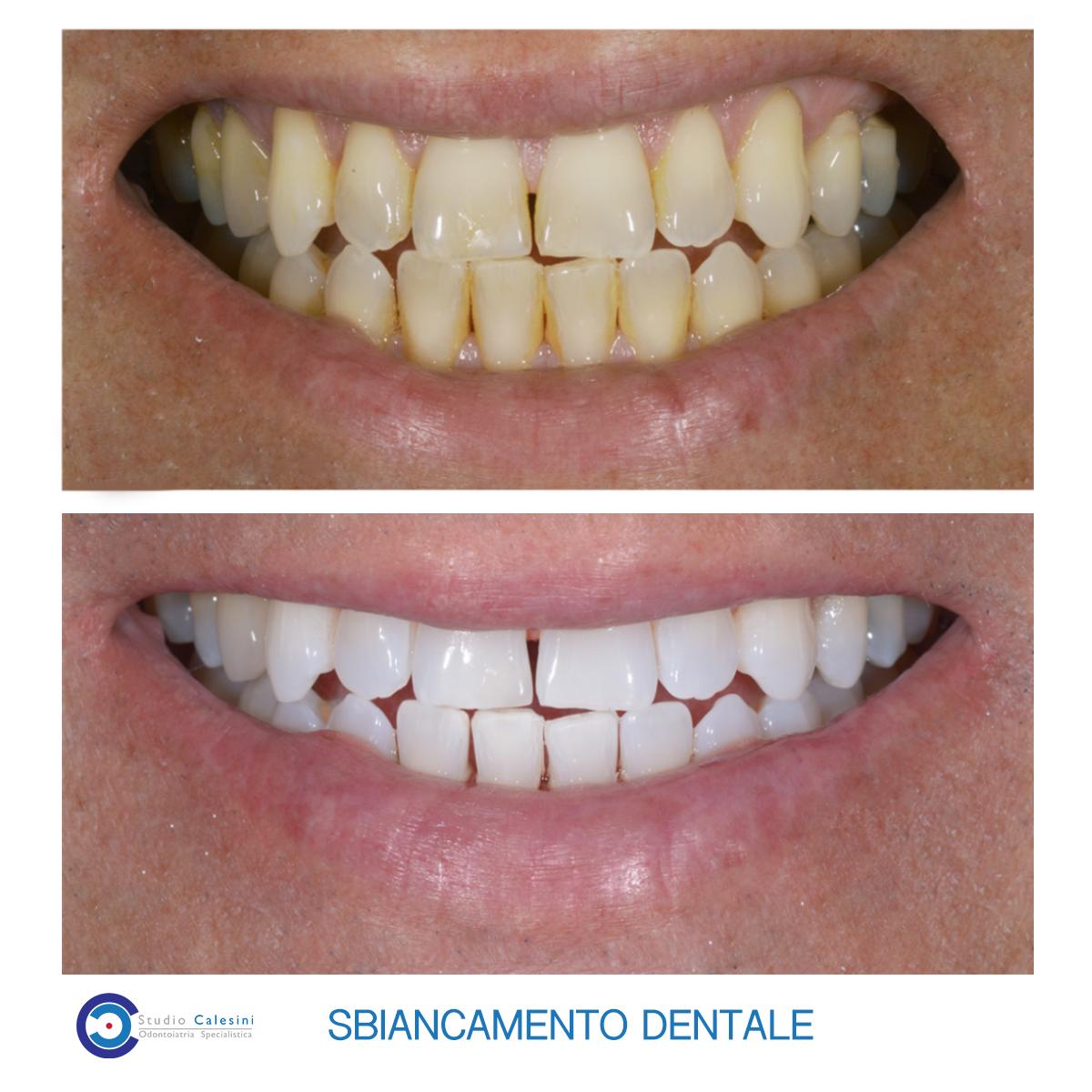 Denti gialli: un avviso a prenderti cura dei tuoi denti!