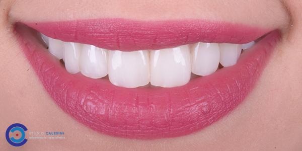 Estetica dentale e la connessione con la salute orale.