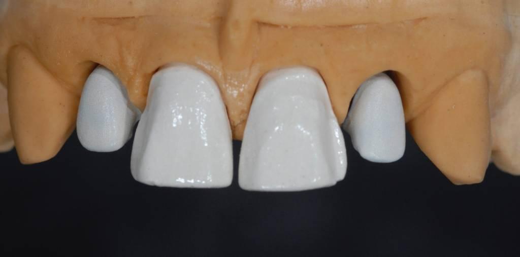 MTM, Agenesia Dentale, agenesie dentali, protesi, corone, faccette, apparecchio, dentista, odontoiatria estetica, ortodonzia, ponte, maryland,