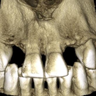 Agenesia Dentale, agenesie dentali, protesi, corone, faccette, apparecchio, dentista, odontoiatria estetica, ortodonzia, ponte, maryland,