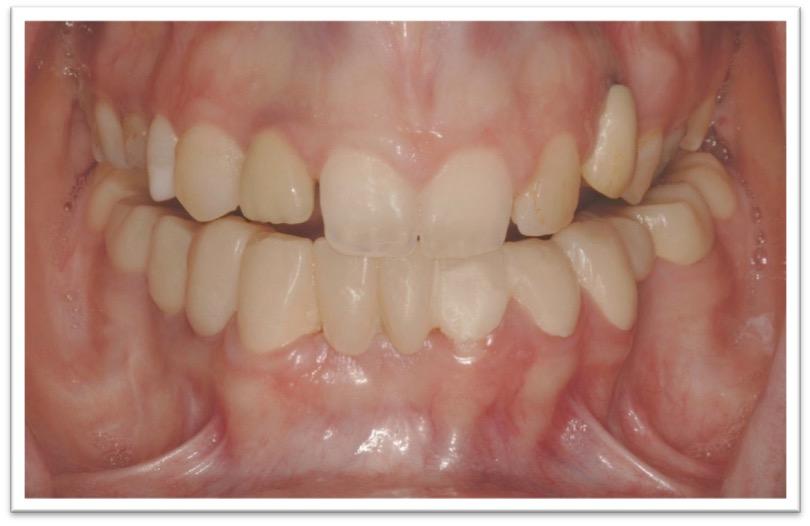 Sorriso gengivale ed agenesie dentale