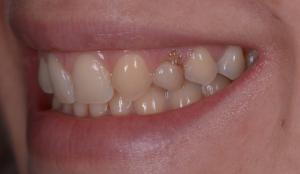 Visione pre-operatoria della zona orale.