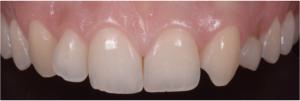 Denti Incisivi, protesi, corone, faccette, apparecchio, dentista, odontoiatria estetica, ortodonzia, ponte, maryland,