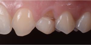 Denti incisivi, Agenesia Dentale, agenesie dentali, protesi, corone, faccette, apparecchio, dentista, odontoiatria , ortodonzia, ponte, maryland,