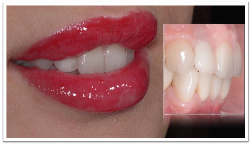 sorriso gengivale ed agenesie dentali
