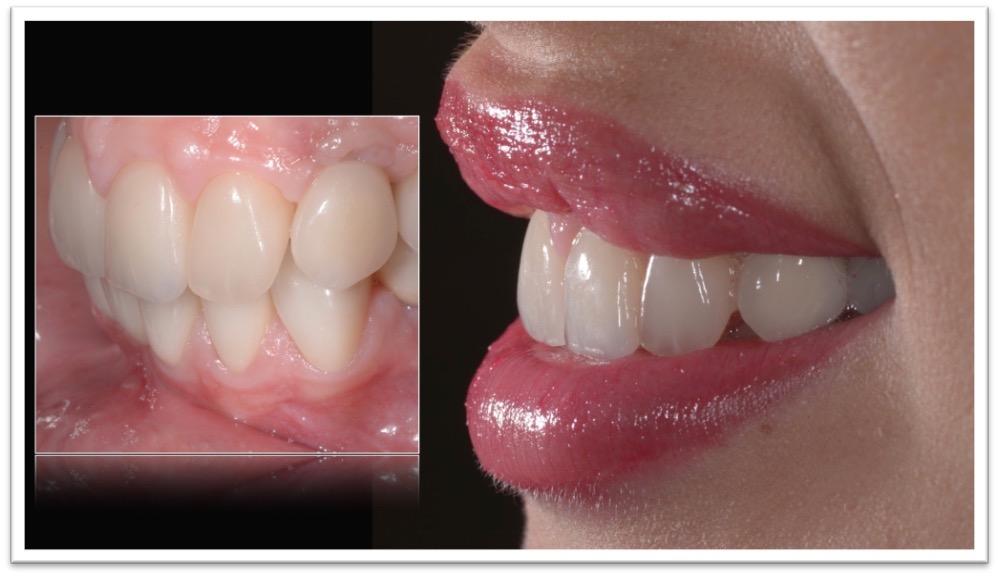 agenesie dentali