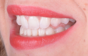 Agenesia Dentale, agenesie dentali, protesi, corone, faccette, apparecchio, dentista, odontoiatria , ortodonzia, ponte, maryland,