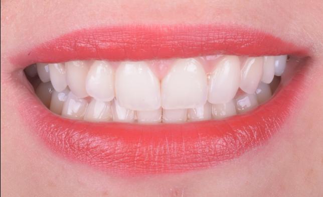 Denti incisivi Agenesia Dentale, agenesie dentali, protesi, corone, faccette, apparecchio, dentista, odontoiatria estetica, ortodonzia, ponte, maryland,