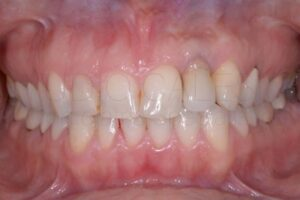 Impianto malposto, agenesie dentali e sorriso gengivale