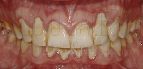 igiene detale, igiene orale, salute orale, salute dentale, igienista dentale, pulizia dentale, pulizia dei denti, sbiancamento dentale