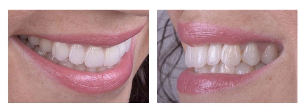 Impianto mal posto, agenesie dentali e sorriso gengivale