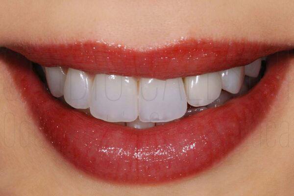 protesi, Protesi dentaria, protesi dentale fissa, protesi dentali fisse